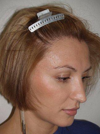 Saç nakli restorasyonu