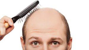 Erkeklerde Saç Ekimi Yöntemleri