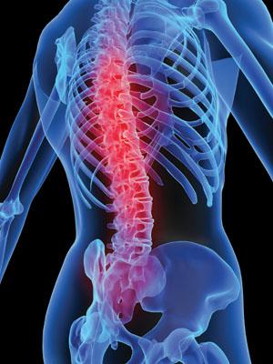 Ortopedi