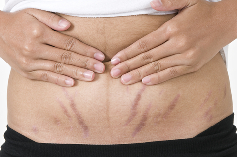 http://www.dreamstime.com/stock-photos-stretch-marks-pregnancy-image22297353