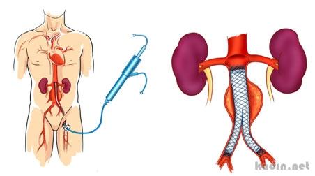 Aort Anevrizması Nedir Neden Oluşur