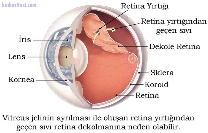 Retina Nedir?