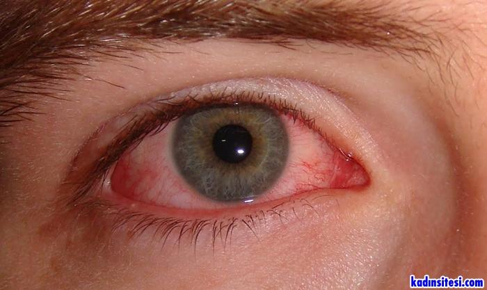 Gözde Görülen Alerjik Konjonktivit Hastalığı Nedir?