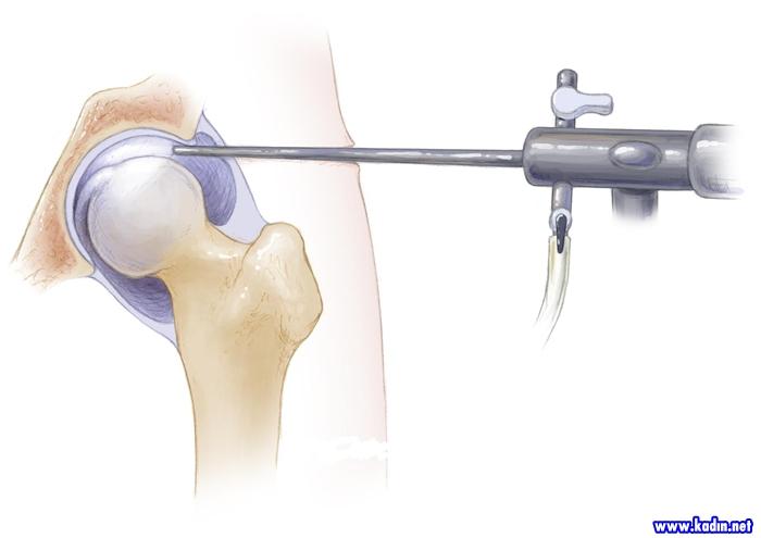 Artroskopik Cerrahi Nedir