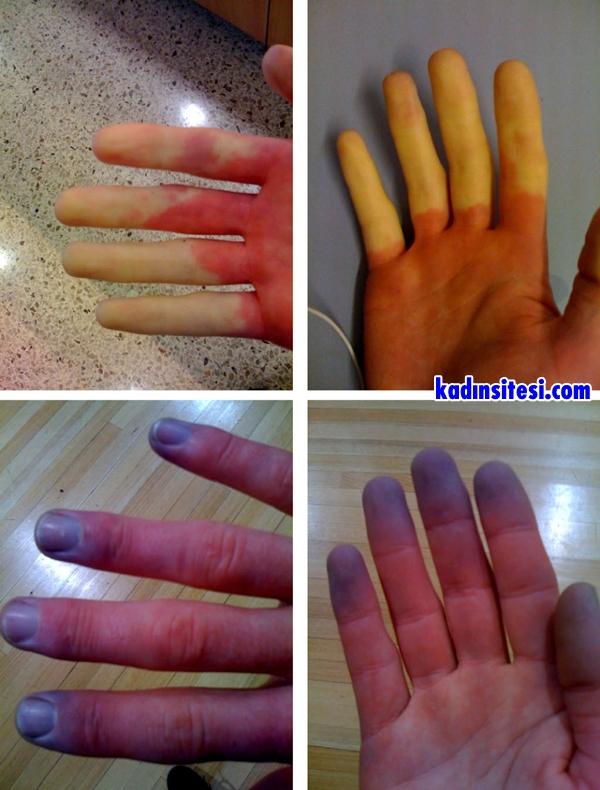 Raynaud Hastalığı Nedir?