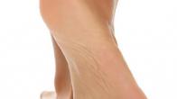 Ayak Kokusu Nasıl Önlenebilir?