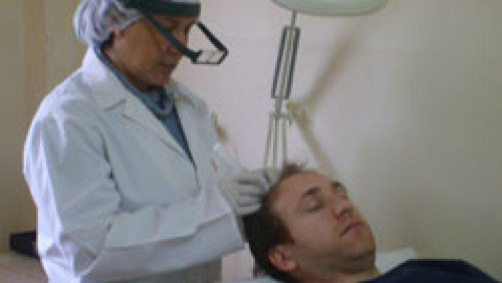 Saç Mezoterapisi Uygulaması Kimlere Yapılır?