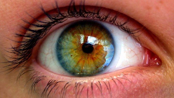 Sarı Nokta Hastalığı Nedir?