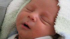 Yeni doğan bebeğin cilt rengi