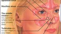 Nefes darlığı için estetik burun ameliyatı