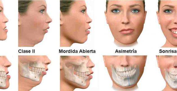Çene Estetiği ve Ortognatik Cerrahi