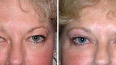 Göz Kapağı Estetik Ameliyatı