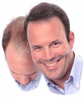 saç dökülmesi, saç ekim zararları