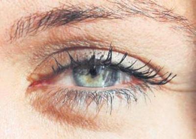 Göz Torbaları, Göz Şişmesi