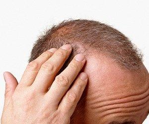 erkelerde saç dökülmesi